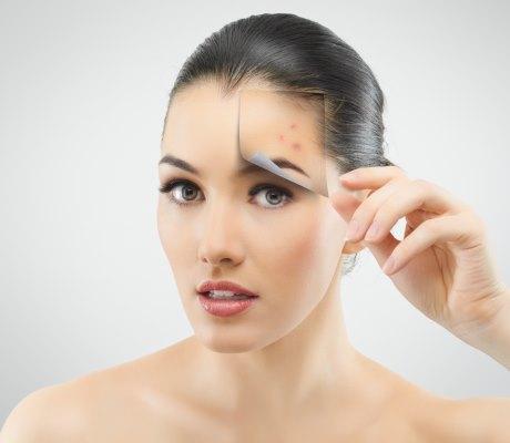 От чего помогает настойка календулы. Применение от прыщей, полоскание горла, лечение уха, кожи и волос